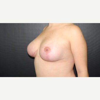 18-24 year old woman treated with Breast Lift after 1788130