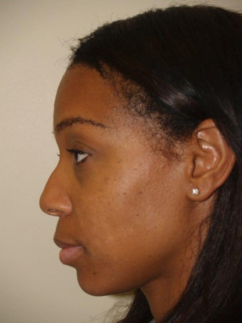 Rhinoplasty before 1155438
