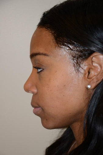 Rhinoplasty after 1155438