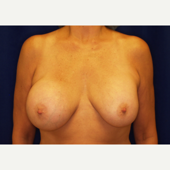 55-64 year old woman treated with Breast Implant Revision before 3061193