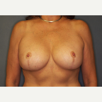 55-64 year old woman treated with Breast Implant Revision after 3061193