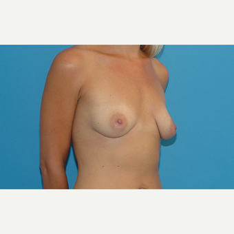 34 year old woman treated with Breast Implants before 3200705