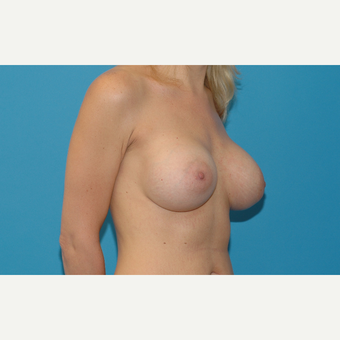 34 year old woman treated with Breast Implants after 3200705