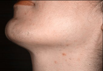 Laser hair removal in Middle-Easterner after 109822
