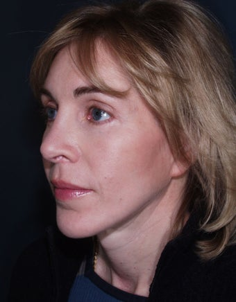 Laser used for cutting - Vertical Facelift after 113264