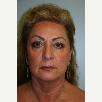52 year old woman treated with Facelift before 3667728