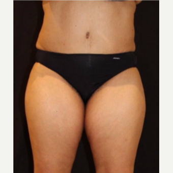 Female treated with CoolSculpting before 3744267