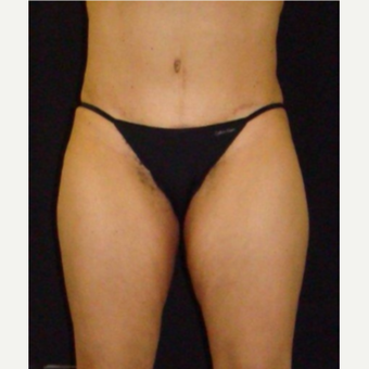 Female treated with CoolSculpting after 3744267