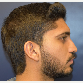 18-24 year old man treated with Nose Surgery before 3226849
