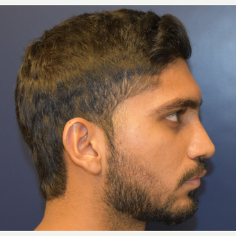 18-24 year old man treated with Nose Surgery after 3226849