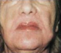 Skin Tightening after 208860