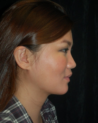 Cheek Fat Pad Removal after 1252278