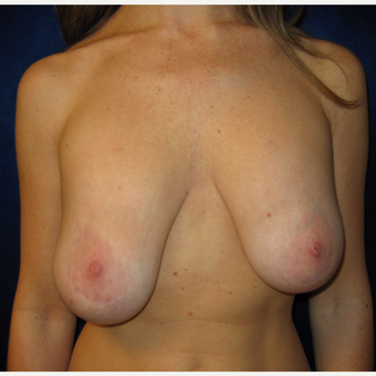 25-34 year old woman treated with Breast Lift before 3707546