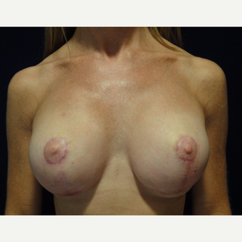 25-34 year old woman treated with Breast Lift after 3707546