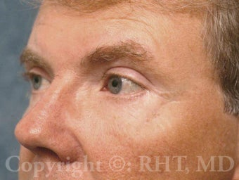 Eyelid surgery (Blepharoplasty)--upper and lower eyelids after 596332