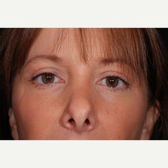 Blepharoplasty - Eye Lid Surgery after 2109328