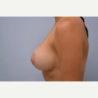 35-44 year old woman treated with Breast Implant Removal 1613206