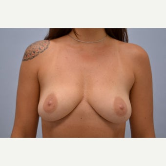 35-44 year old woman treated with Breast Implant Removal after 1613206