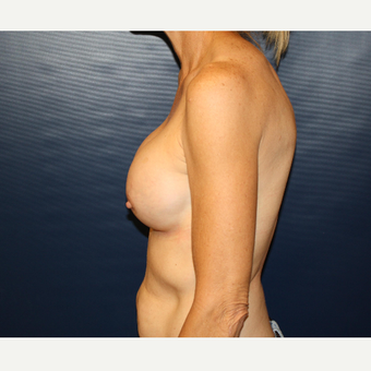 45-54 year old woman treated with Breast Augmentation after 3033500