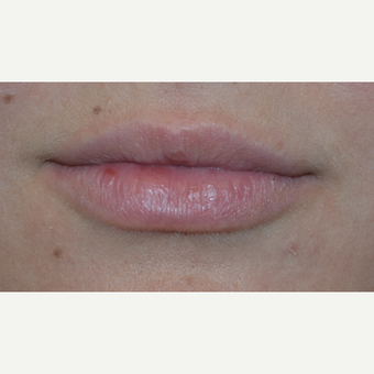 18-24 year old woman treated with Juvederm before 3843927