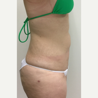 25-34 year old woman treated with Liposuction after 3493740