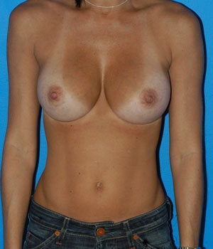 Breast Augmentation with 500 cc Silicone Implants and Inverted Nipple Repair