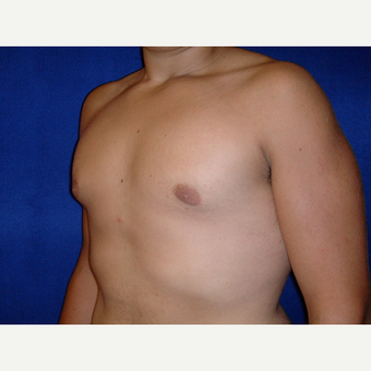 25-34 year old man treated with Male Breast Reduction after 3727309