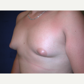 25-34 year old man treated with Male Breast Reduction before 3727309
