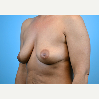 35-44 year old woman treated with Breast Implants before 3440930