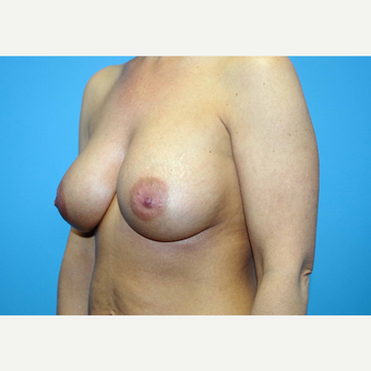 35-44 year old woman treated with Breast Implants after 3440930