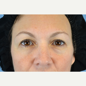 45-54 year old woman treated with Eyelid Surgery before 3741517
