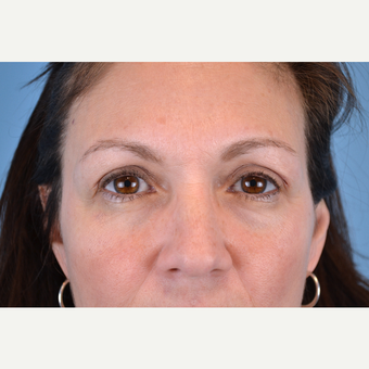 45-54 year old woman treated with Eyelid Surgery after 3741517
