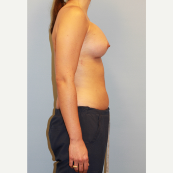 18-24 year old woman treated with Breast Augmentation after 3027399