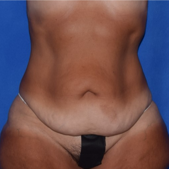 45-54 year old woman treated with No-Drain Body Lift before 3755252