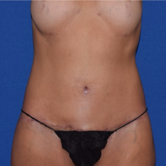 45-54 year old woman treated with No-Drain Body Lift after 3755252