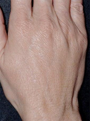 Aging Hands after 340590