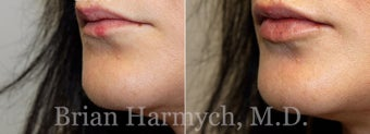 28 year-old female 1 week before and after lip injection with Restylane before 3441378