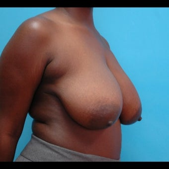 26 year old woman treated for Breast Reduction 1525126