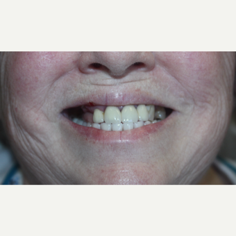 65-74 year old woman treated with All-on-Four Implant Restoration after 3126729
