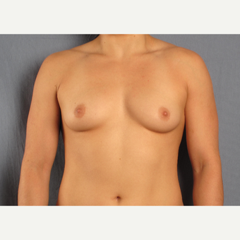 25-34 year old woman treated with Breast Augmentation before 3537431