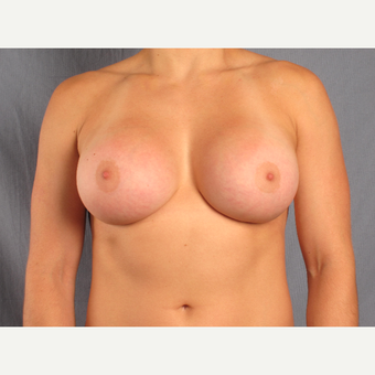 25-34 year old woman treated with Breast Augmentation after 3537431