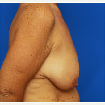 48- year old woman treated with Breast Lift before 3108358