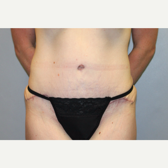 35-44 year old woman treated with Tummy Tuck after 3588701