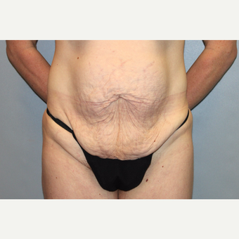 35-44 year old woman treated with Tummy Tuck before 3588701