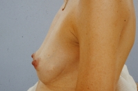 Breast Augmentation before 3446174
