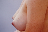 Breast Augmentation after 3446174