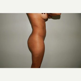 25-34 year old woman treated with Brazilian Butt Lift before 3175224