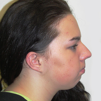 Chin Implant before 3175317