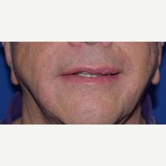 55-64 year old man treated with Radiesse after 3649260