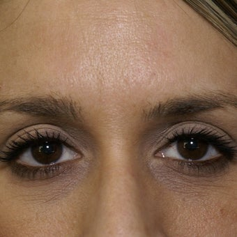 35-44 year old woman treated with Botox after 1743561